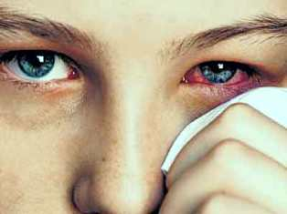 How to Treat Sore Eyes (And Prevent It From Spreading!)